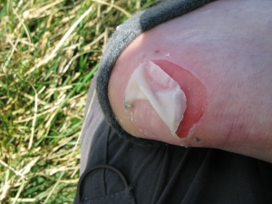 Foot problems, Dales Way, April 2012