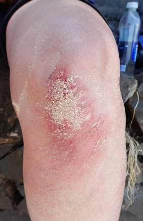 This hiker fell heavily and sustained deep gashes on her knee. Having cleaned and irrigated the wound thoroughly, Celox clotting agent stopped the bleeding instantly. It was then bandaged for the remainder of the hike